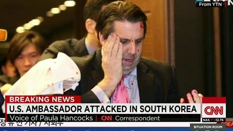 Segundo a Polícia, Embaixador dos EUA para a Coreia do Sul Mark Lippert foi atacado com uma pequena lâmina de barbear